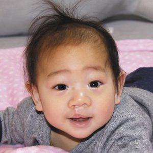 写真は手術から約3カ月後。手術痕も薄くなってきた=東京都内の自宅で