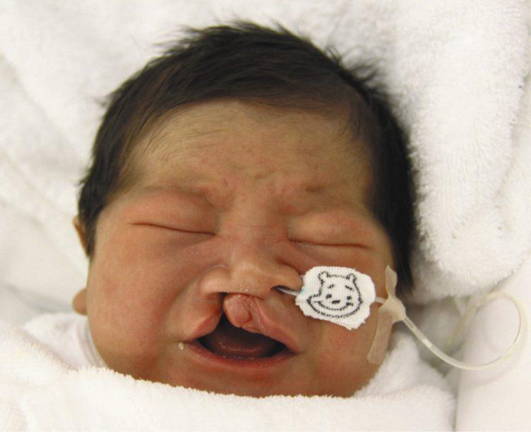 写真は口唇裂のため、鼻に挿入したチューブからも授乳した=2017年7月、都内の病院で