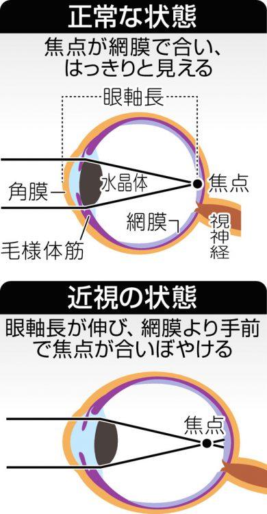図解 近視の状態