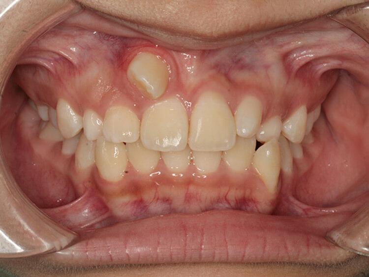 20210928歯科矯正