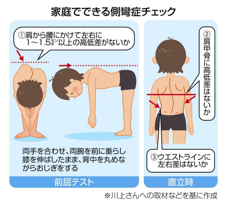 図解 家庭でできる脊柱側彎症チェック
